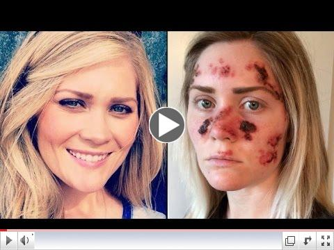 Woman's skin cancer selfie goes viral