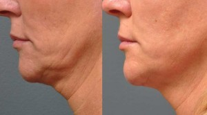It's Facelift without Cutting