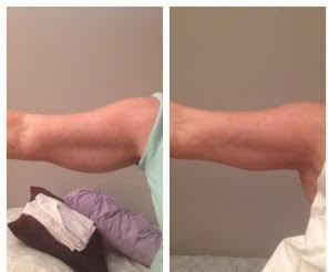 arms after BSE