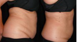 "Primary Aesthetics in Bedford is adding celebrity ""fav"" Body Slimming Experts (BSE) Ultra-Slim Plus II"