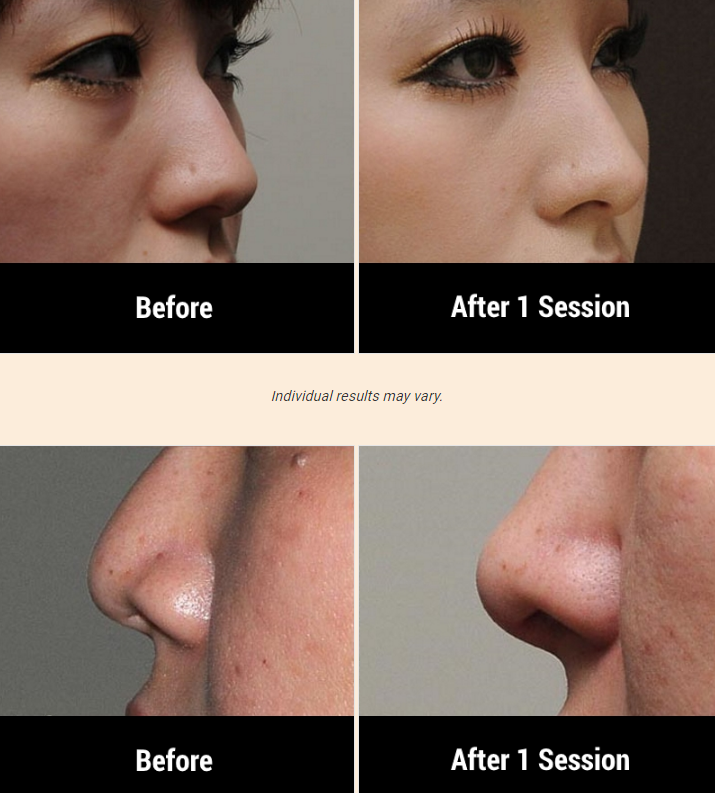 3 BENEFITS OF GETTING A NOSE JOB WITHOUT SURGERY AT DORE AESTHETICS